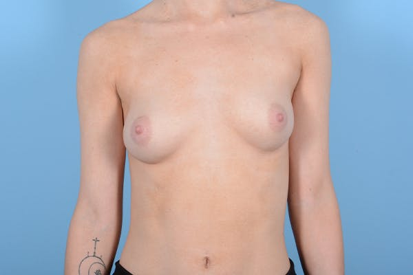 Breast Augmentation Gallery - Patient 18426854 - Image 1