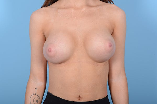 Breast Augmentation Gallery - Patient 18426854 - Image 2