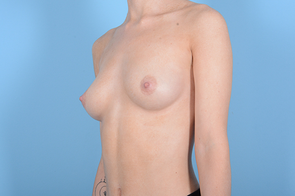 Breast Augmentation Gallery - Patient 18426854 - Image 3