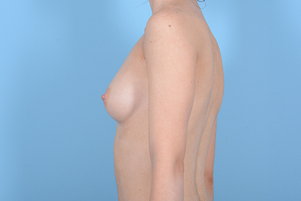 Breast Augmentation Gallery - Patient 18426854 - Image 5