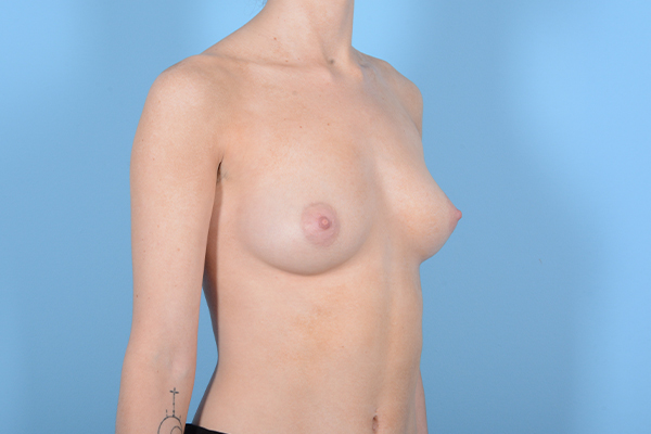 Breast Augmentation Gallery - Patient 18426854 - Image 7