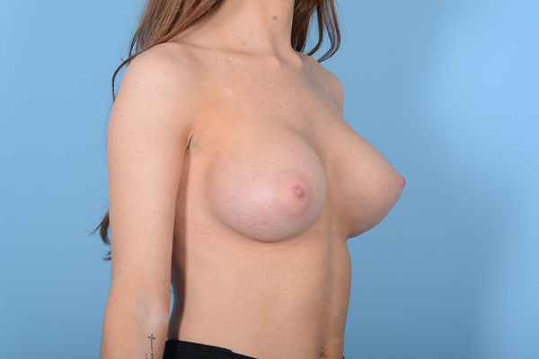 Breast Augmentation Gallery - Patient 18426854 - Image 8
