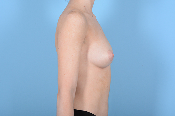 Breast Augmentation Gallery - Patient 18426854 - Image 9