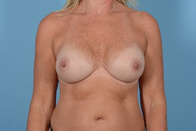 Breast Revision Gallery - Patient 18426865 - Image 1