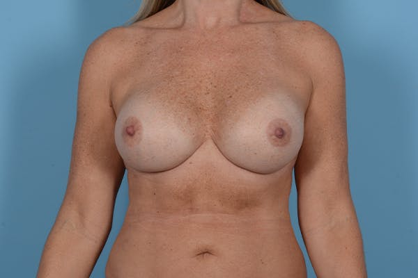 Breast Revision Gallery - Patient 18426865 - Image 2