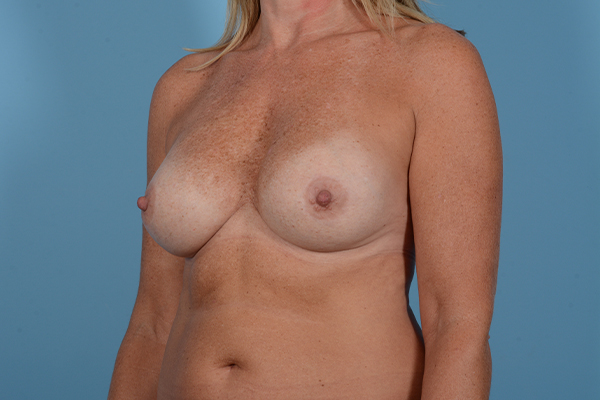 Breast Revision Gallery - Patient 18426865 - Image 3