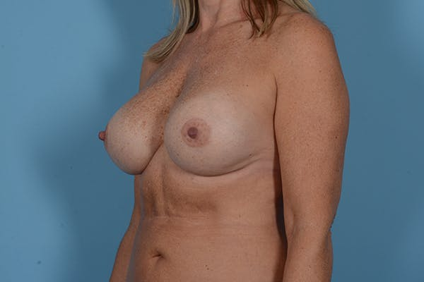 Breast Revision Gallery - Patient 18426865 - Image 4