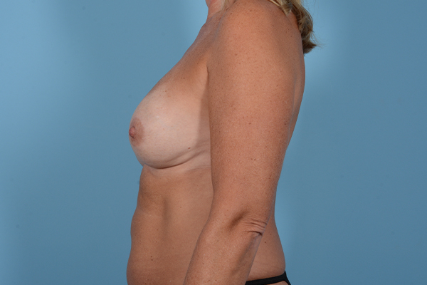 Breast Revision Gallery - Patient 18426865 - Image 5
