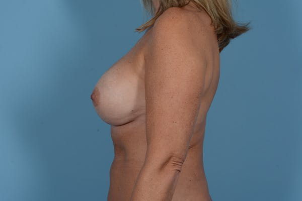 Breast Revision Gallery - Patient 18426865 - Image 6
