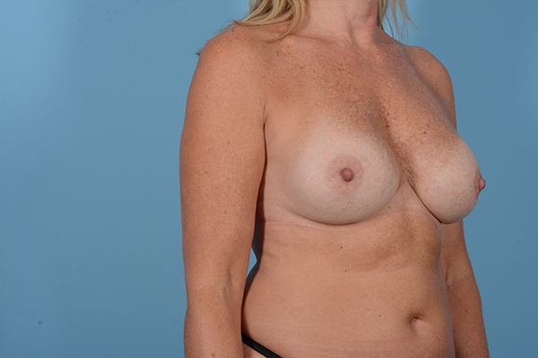Breast Revision Gallery - Patient 18426865 - Image 7