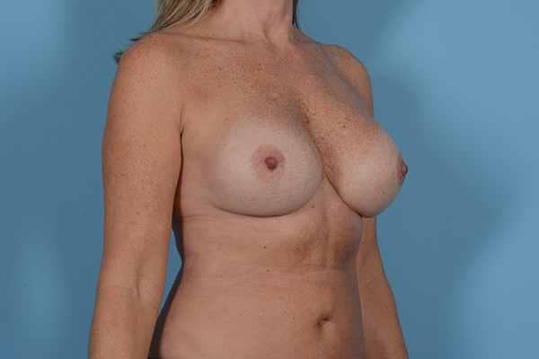 Breast Revision Gallery - Patient 18426865 - Image 8