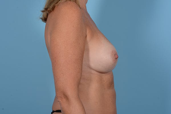Breast Revision Gallery - Patient 18426865 - Image 9