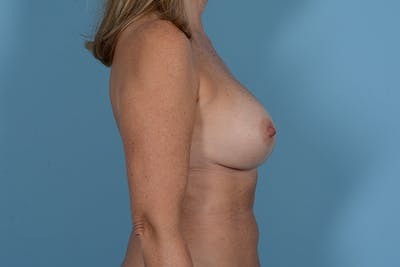 Breast Revision Gallery - Patient 18426865 - Image 10