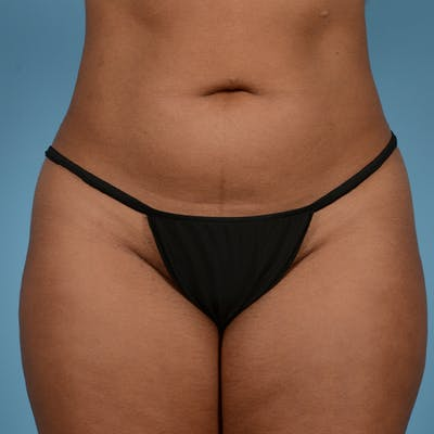 Liposuction Gallery - Patient 23934262 - Image 2