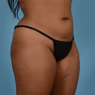 Liposuction Gallery - Patient 23934262 - Image 4