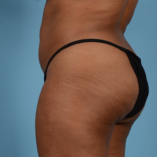 Liposuction Gallery - Patient 23934262 - Image 8