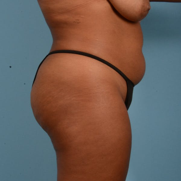 Liposuction Gallery - Patient 23934262 - Image 11