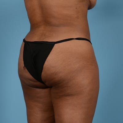 Liposuction Gallery - Patient 23934262 - Image 12