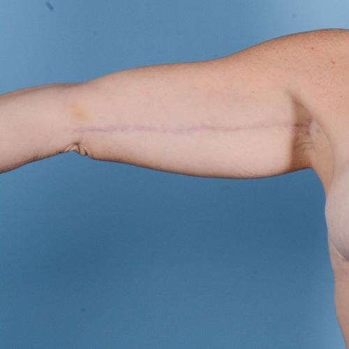 Brachioplasty Gallery - Patient 24221307 - Image 2