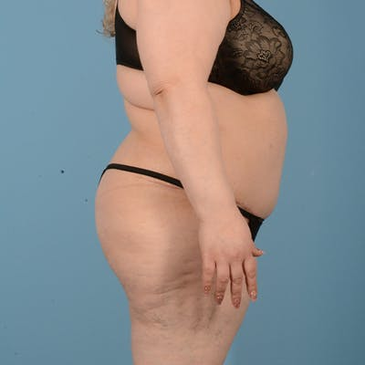 Panniculectomy Gallery - Patient 24221754 - Image 6