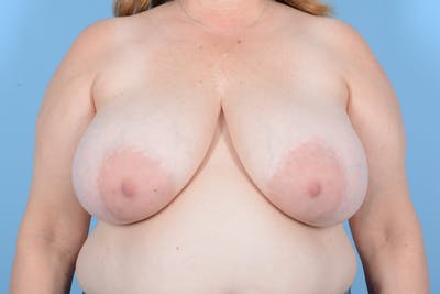 Breast Reduction with Lift Gallery - Patient 24221855 - Image 1
