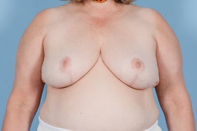 Breast Reduction with Lift Gallery - Patient 24221855 - Image 2