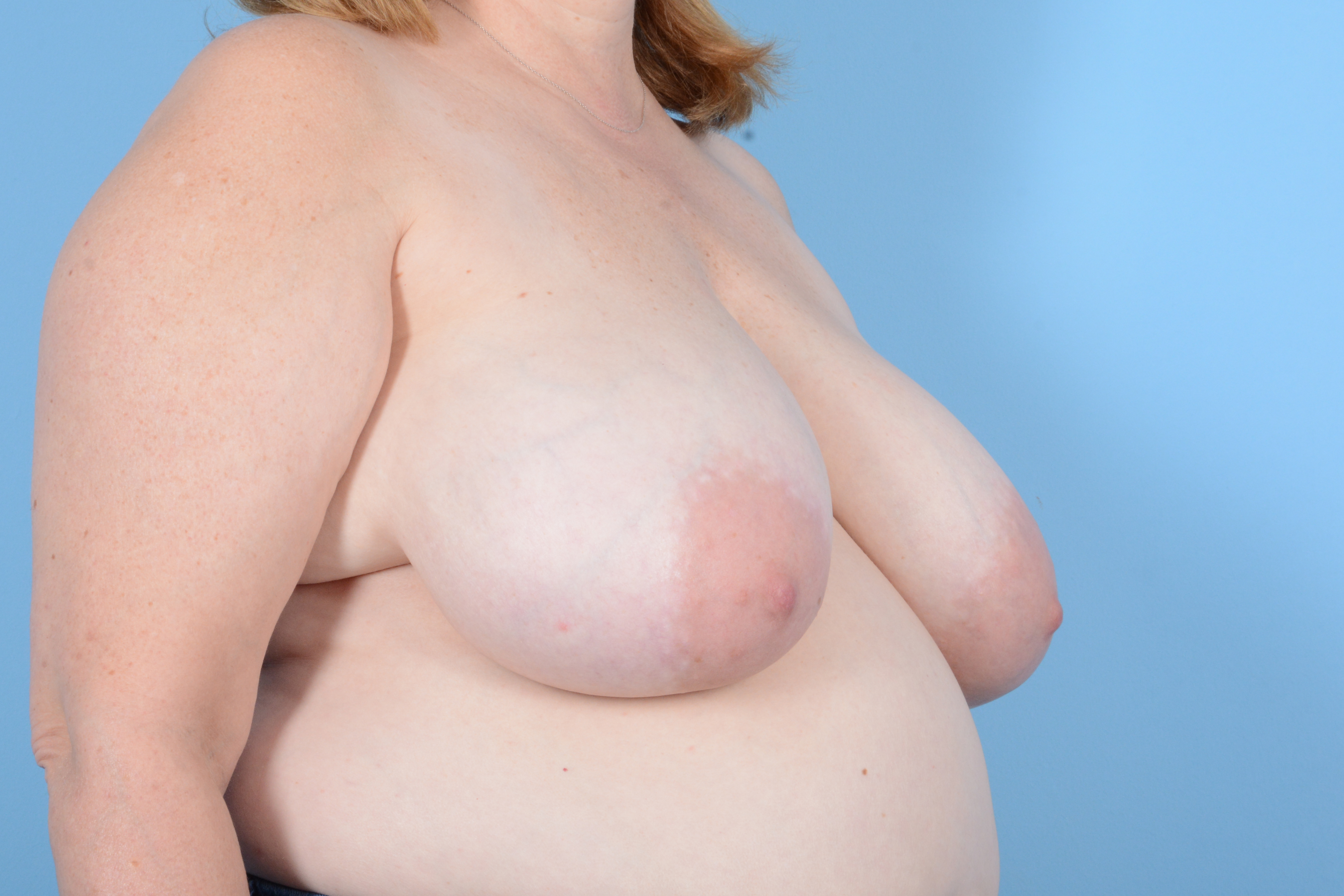 Breast Reduction with Lift Gallery - Patient 24221855 - Image 3
