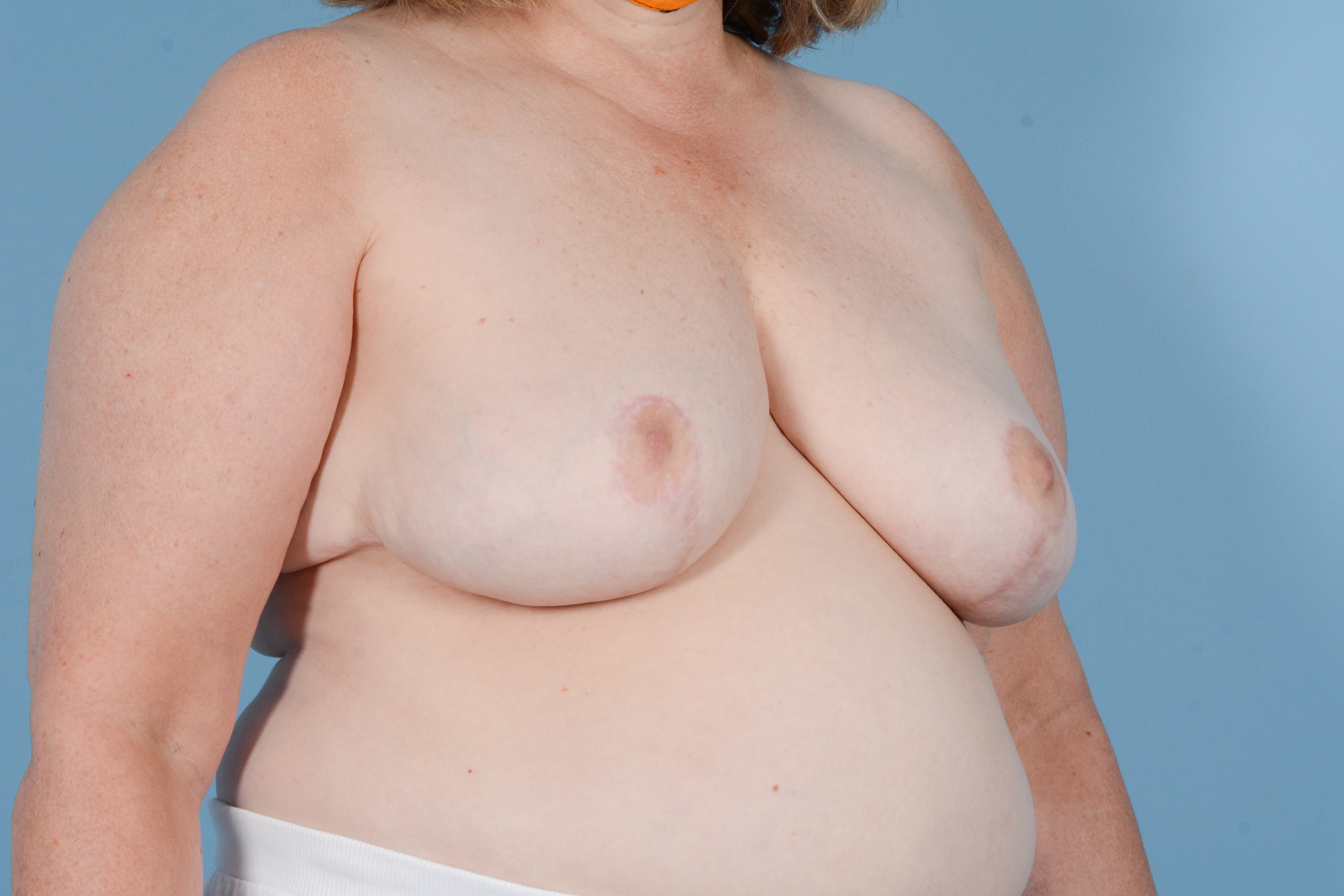 Breast Reduction with Lift Gallery - Patient 24221855 - Image 4