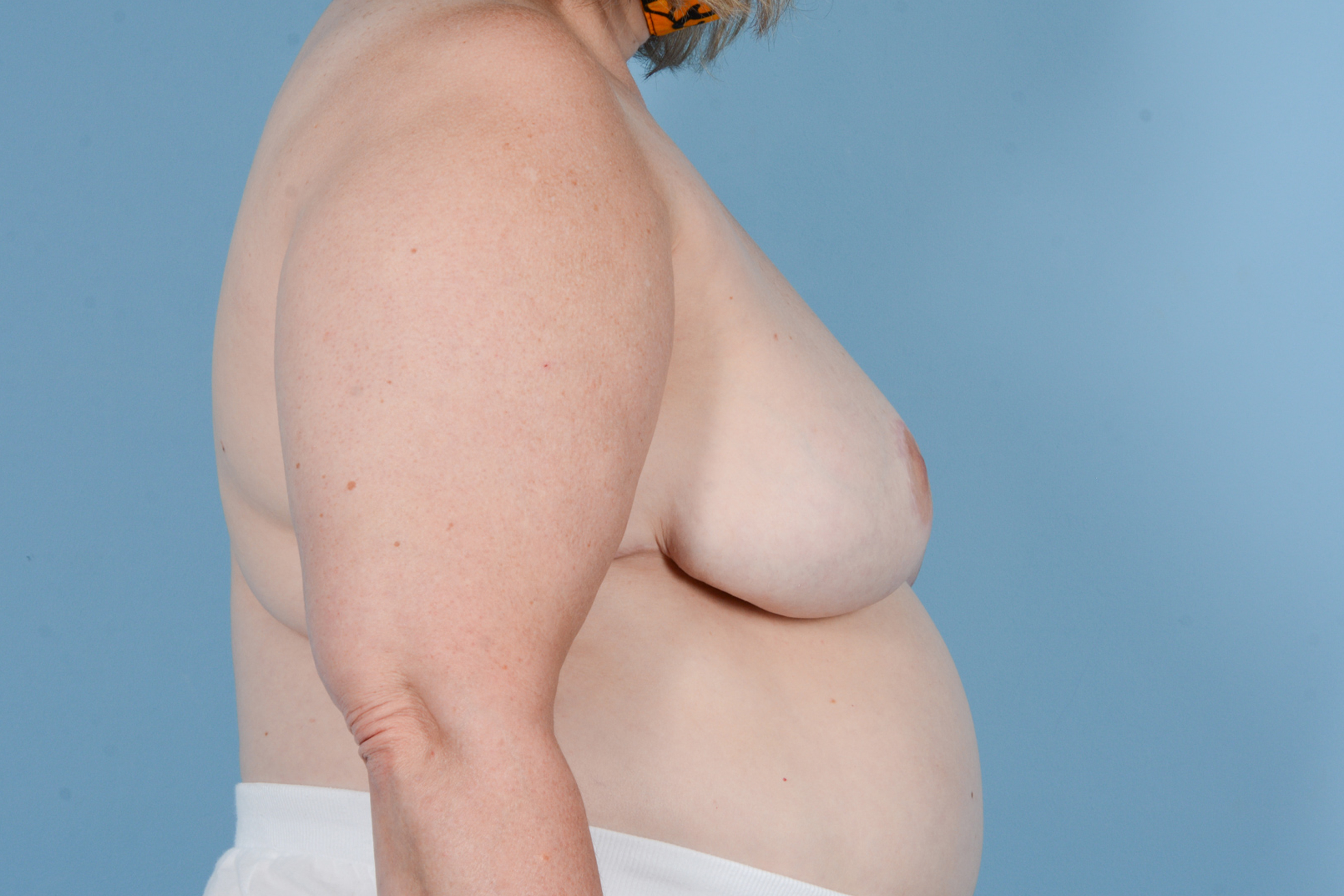 Breast Reduction with Lift Gallery - Patient 24221855 - Image 6