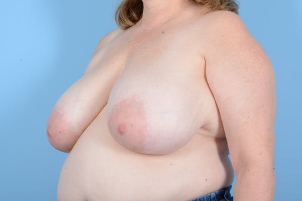 Breast Reduction with Lift Gallery - Patient 24221855 - Image 7