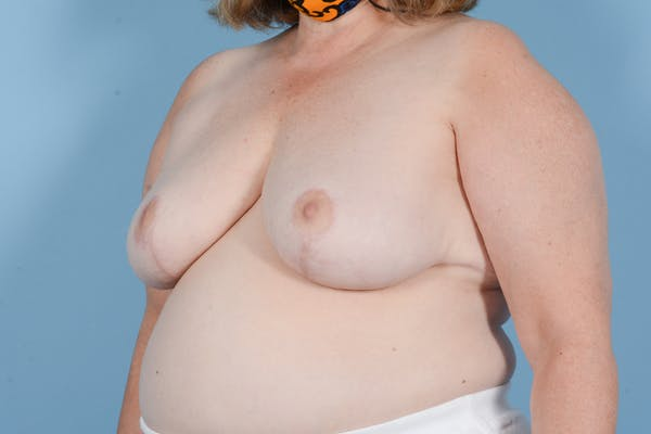 Breast Reduction with Lift Gallery - Patient 24221855 - Image 8
