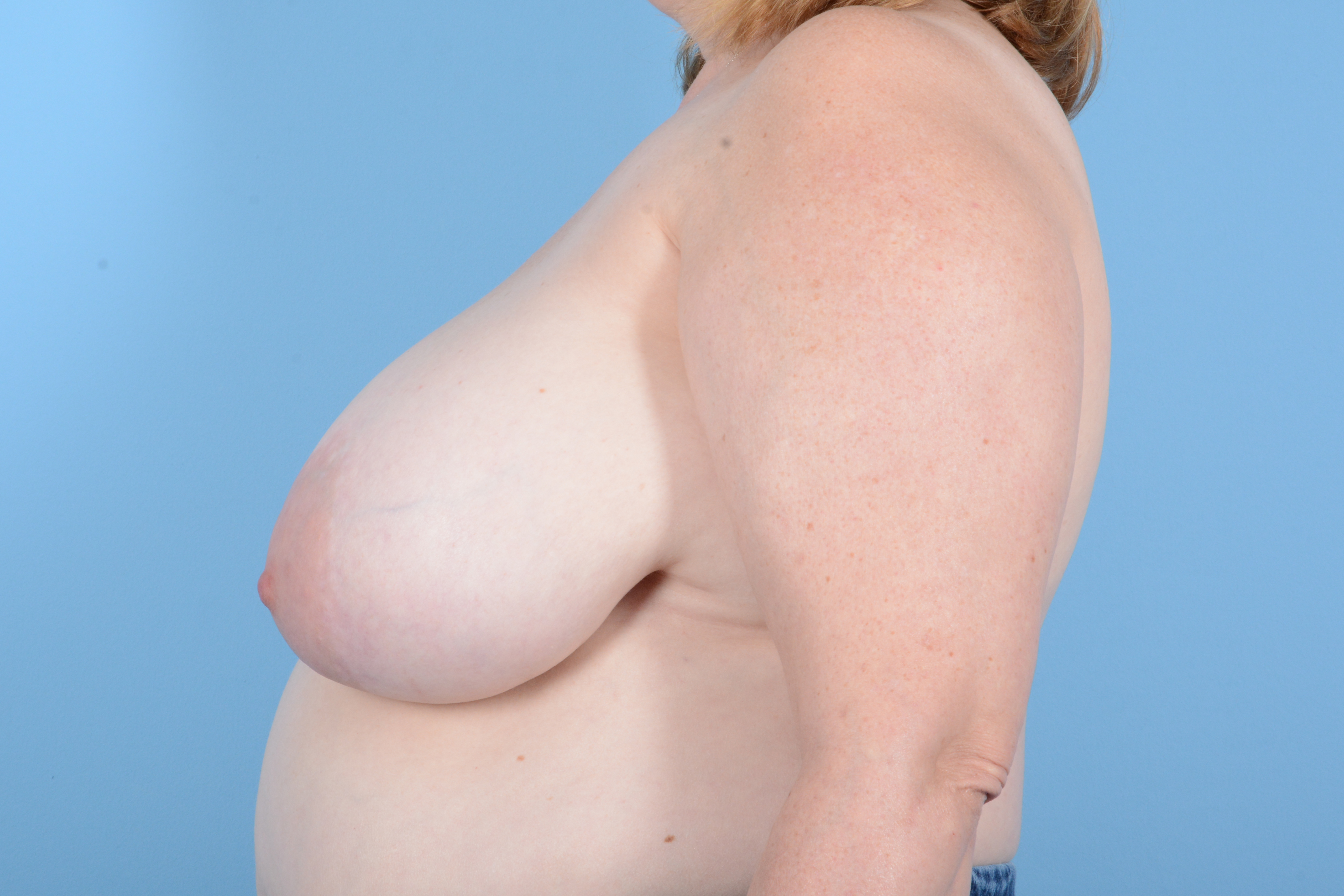 Breast Reduction with Lift Gallery - Patient 24221855 - Image 9