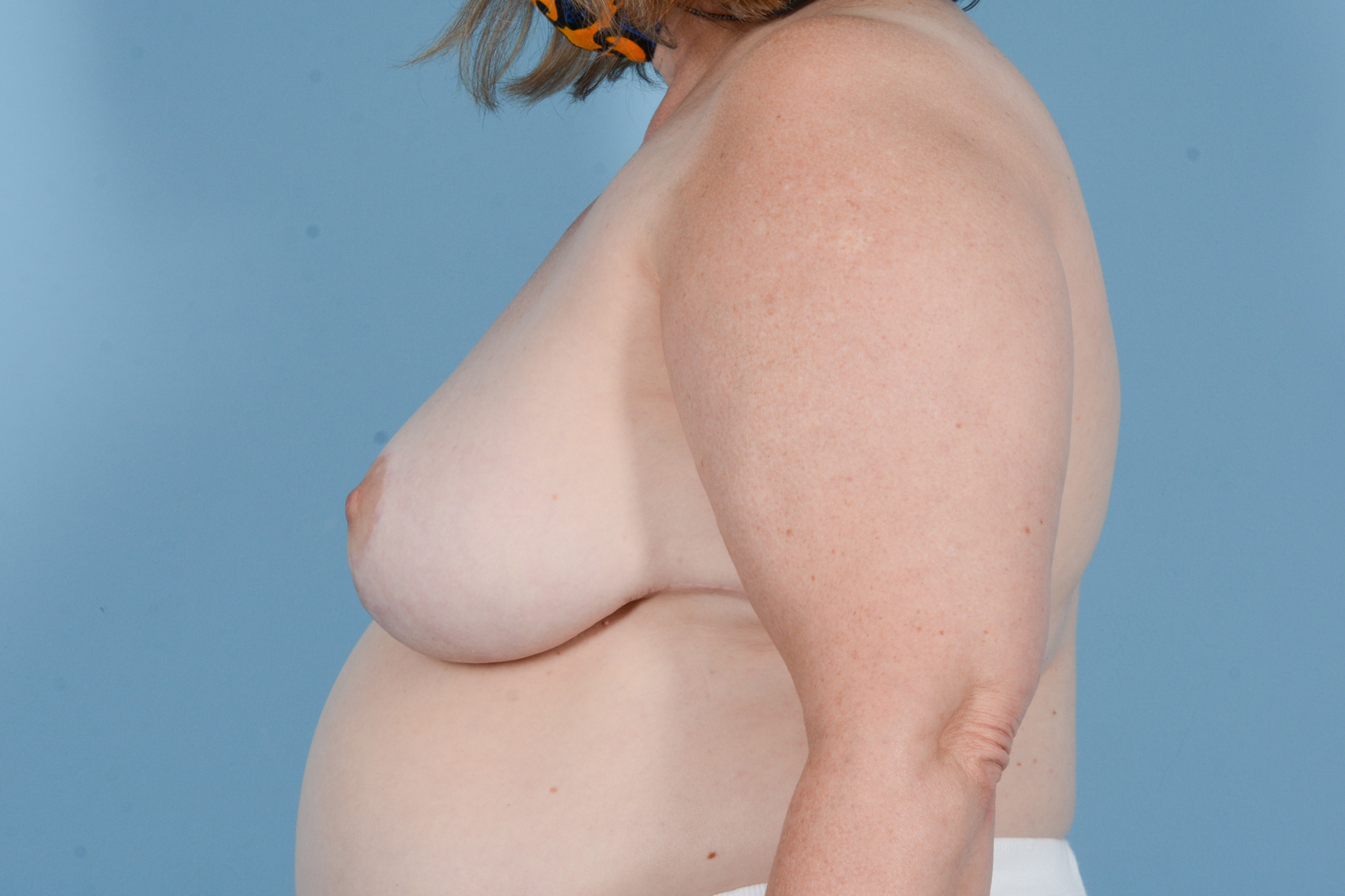 Breast Reduction with Lift Gallery - Patient 24221855 - Image 10