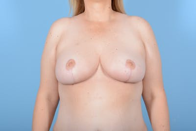 Breast Reduction with Lift Gallery - Patient 24222111 - Image 2