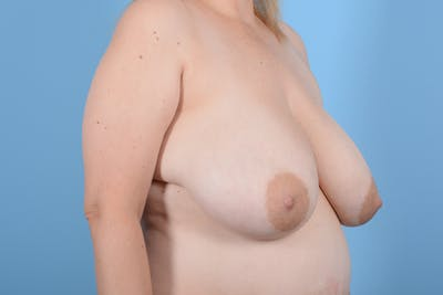 Breast Reduction with Lift Gallery - Patient 24222111 - Image 3