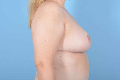 Breast Reduction with Lift Gallery - Patient 24222111 - Image 6