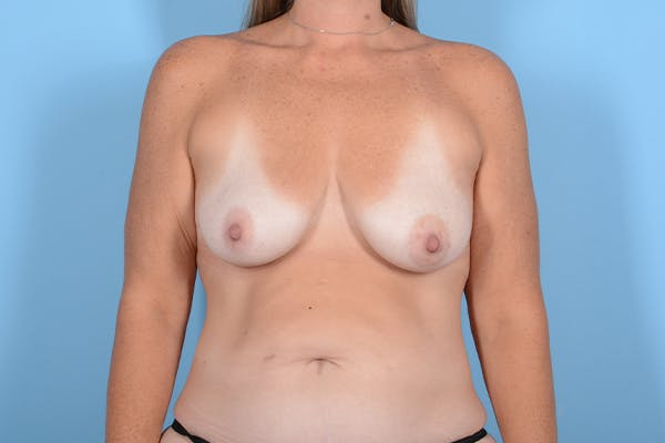 Breast Lift Gallery - Patient 24921874 - Image 1