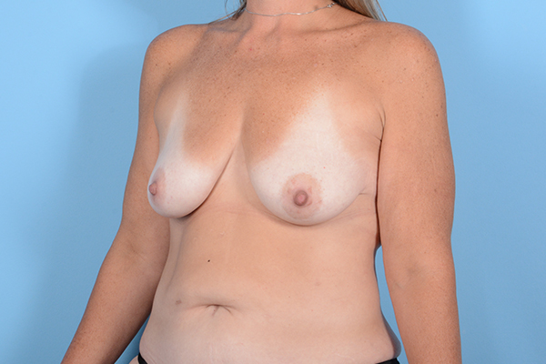 Breast Lift Gallery - Patient 24921874 - Image 3