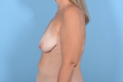 Breast Lift Gallery - Patient 24921874 - Image 5