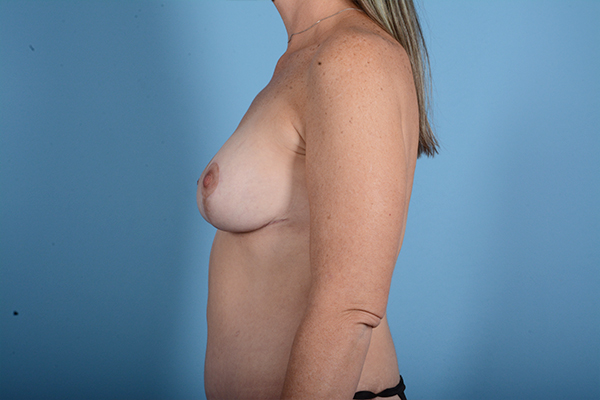 Breast Lift Gallery - Patient 24921874 - Image 6