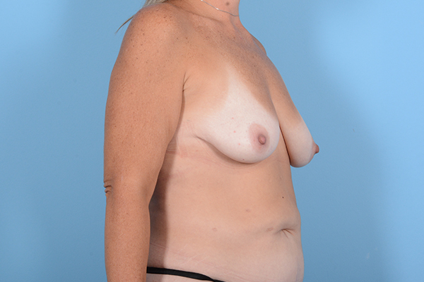 Breast Lift Gallery - Patient 24921874 - Image 7