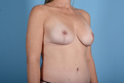 Breast Lift Gallery - Patient 24921874 - Image 8