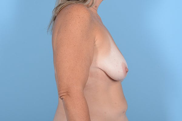 Breast Lift Gallery - Patient 24921874 - Image 9