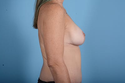Breast Lift Gallery - Patient 24921874 - Image 10