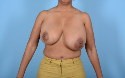 Breast Reduction with Lift Gallery - Patient 24923342 - Image 1