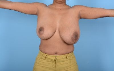 Breast Reduction with Lift Gallery - Patient 24923342 - Image 3