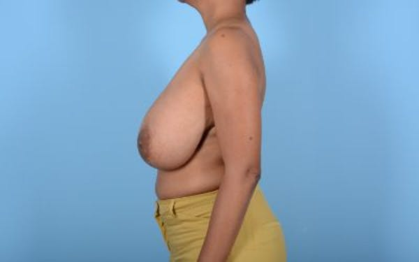 Breast Reduction with Lift Gallery - Patient 24923342 - Image 9