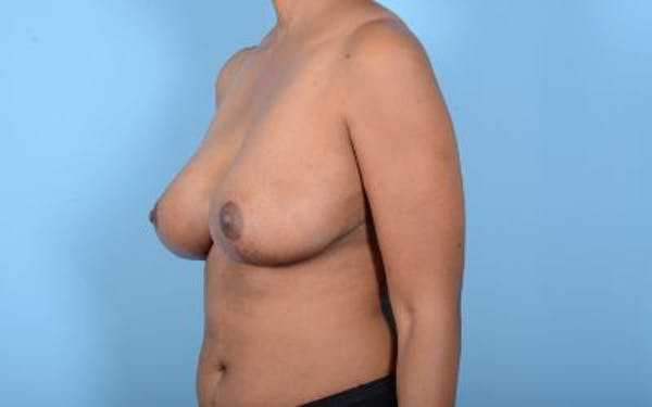 Breast Reduction with Lift Gallery - Patient 24923342 - Image 12