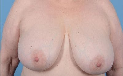 Breast Reduction with Lift Gallery - Patient 24924260 - Image 1