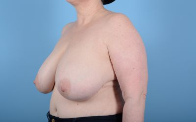 Breast Reduction with Lift Gallery - Patient 24924260 - Image 5